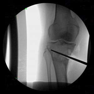 Osteotomy21-300x300