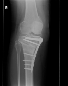 Osteotomy41